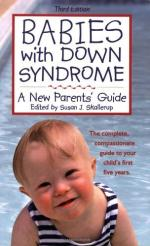 Down Syndrome by