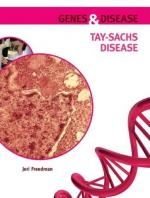 Tay-Sachs disease by